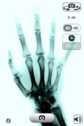X-Ray Scan + Free pentru iPhone